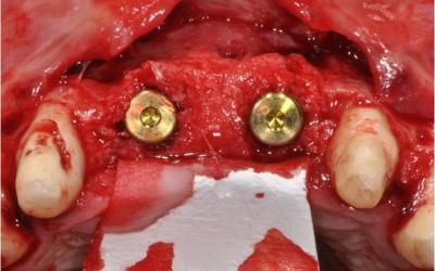 NobelActive implant placement and new autologous bone graft: occlusal view