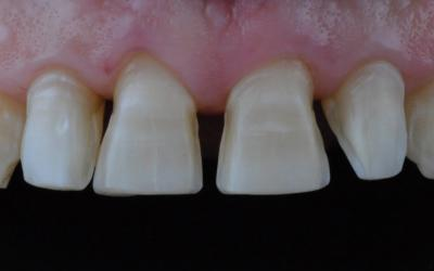 View of anterior teeth after minimally invasive preparation for veneers.