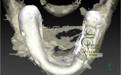 Occlusal view.