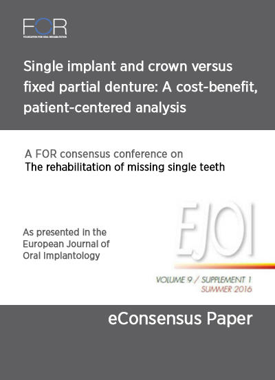 eBook Single implant and crown versus fixed partial denture