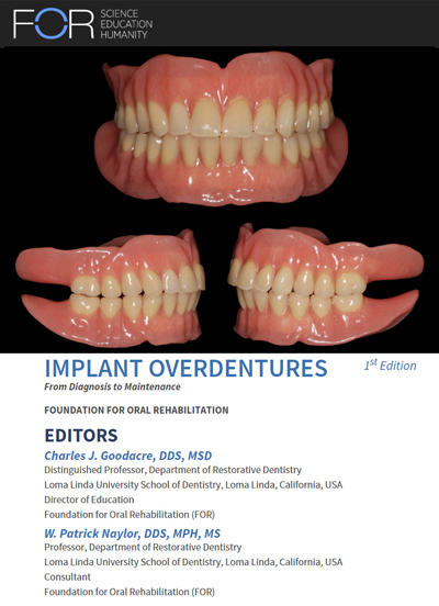 Implant overdenture ebook FOR