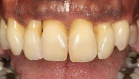 Does the patient have a history of periodontitis?