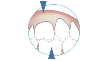 2125-occlusal-schemes.png