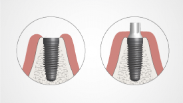 2345-thumb-Implant-supported-vs-abutment-supported.png
