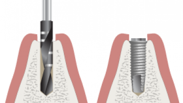 3210-Parallel-implant-placement.png