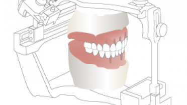 3630-Implant-overdenture-trial-placement.png
