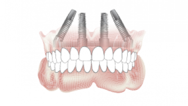 3634-Implant-overdenture-placement.png