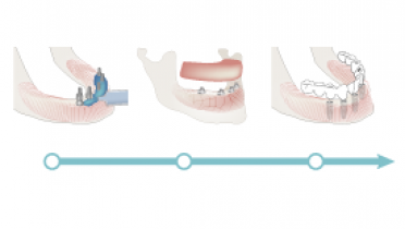 3801_2110-removable-denture.png