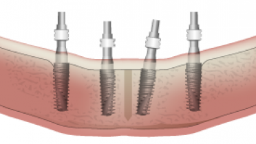3816-parallel-vs-non-parallel-implants-.png