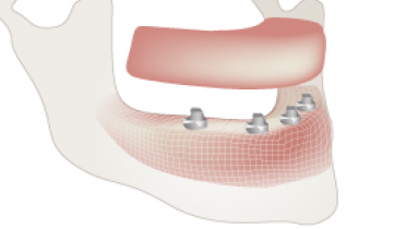 3820-Maxillo-mandibular-relations.png