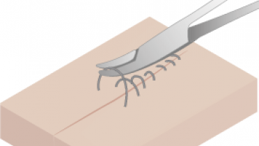 4130-suture-removal.png
