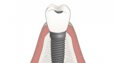 Abutment and material selection, final restoration, esthetic zone