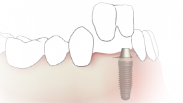 TG2_3430_thumb_Single-implant-crowns-with-cantilever.png