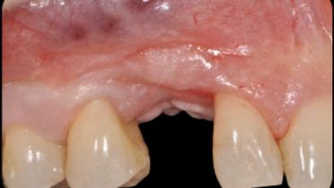 Initial clinical situation. The pre-operative buccal view is showing a missing canine associated with mucogingival deformities as the results of a traumatic extraction of the retained canine. A bone graft was attempted as well as an implant insertion: both bone graft and implant failed.