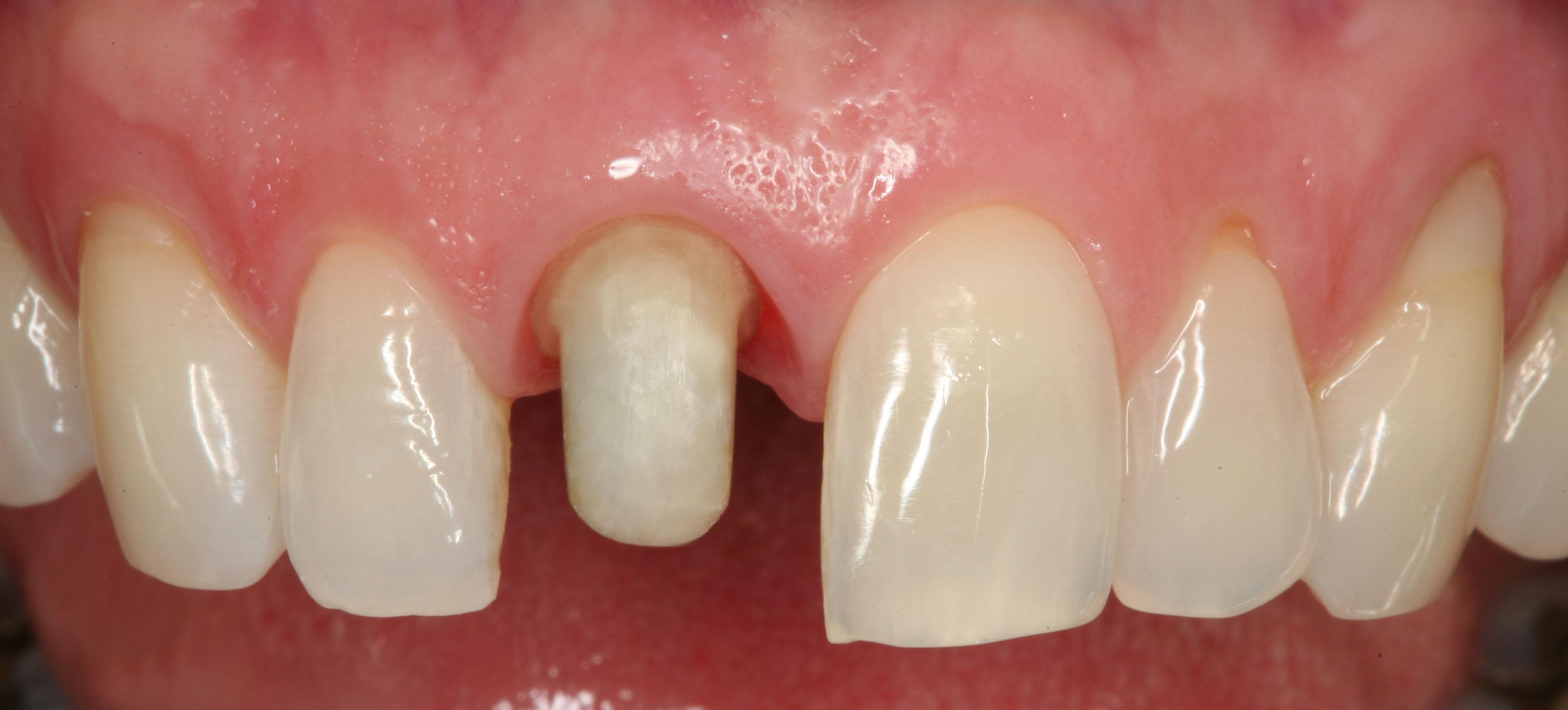 Mài nhỏ răng cửa có HẠI không? Cách phục hình hiệu quả 2