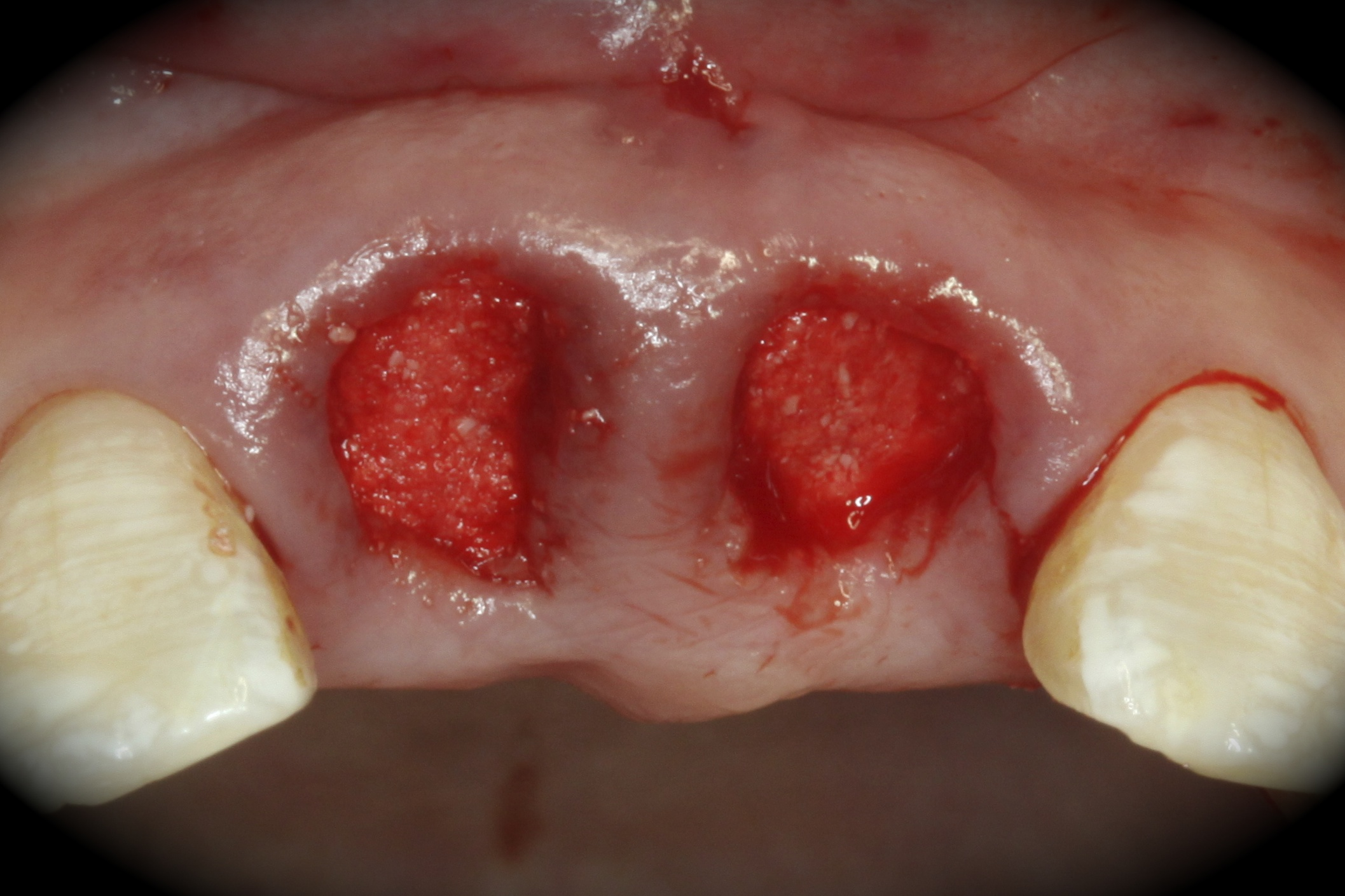 Extraction and replacement of maxillary central incisors | FOR.org
