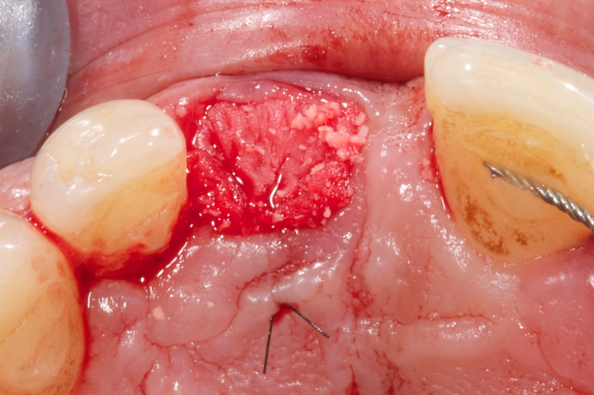 single tooth extraction and implant rehabilitation