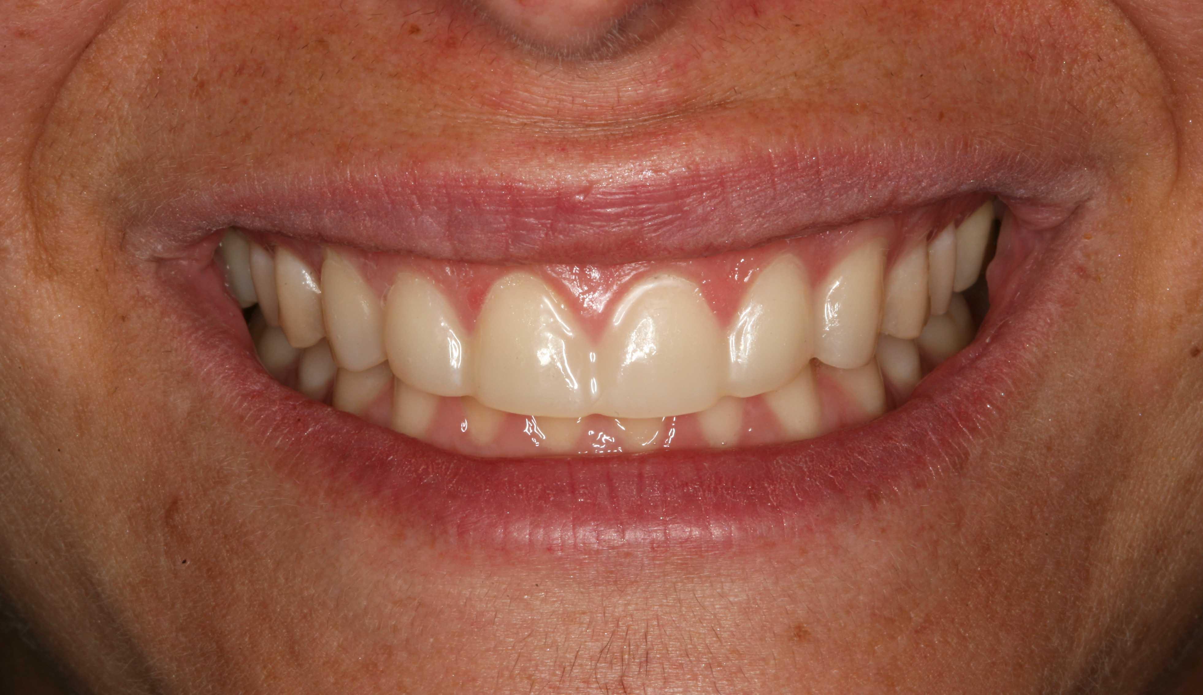 six maxillary anterior all